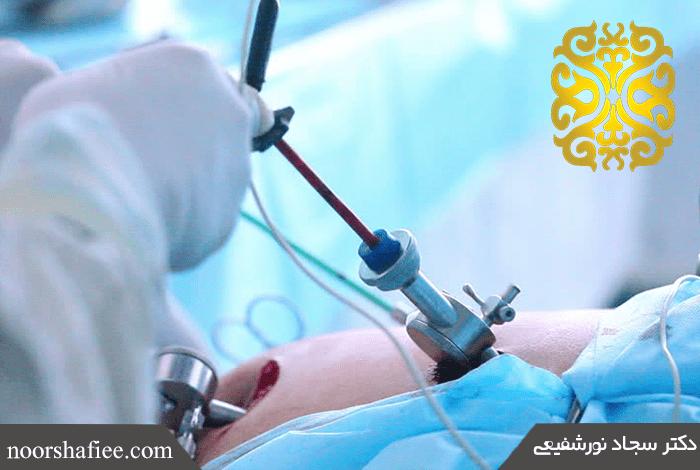 Laparoscopy Surgery   Mashhad Obesity Surgery   Obesity Surgery   Stomach Sleeve Surgery