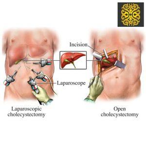 Gallbladder surgery | Hernia Surgery - Stomach Sleeve Surgery